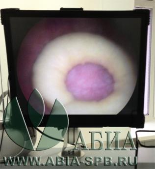 МКБ. Камень мочевого пузыря 3х2,5 см