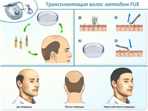 Как можно остановить выпадение волос у мужчин
